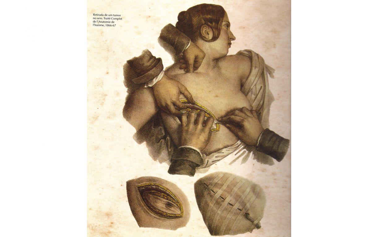 Ilustração de Nicolas-Henri Jacob para o tratado de anatomia de Marc Bougery