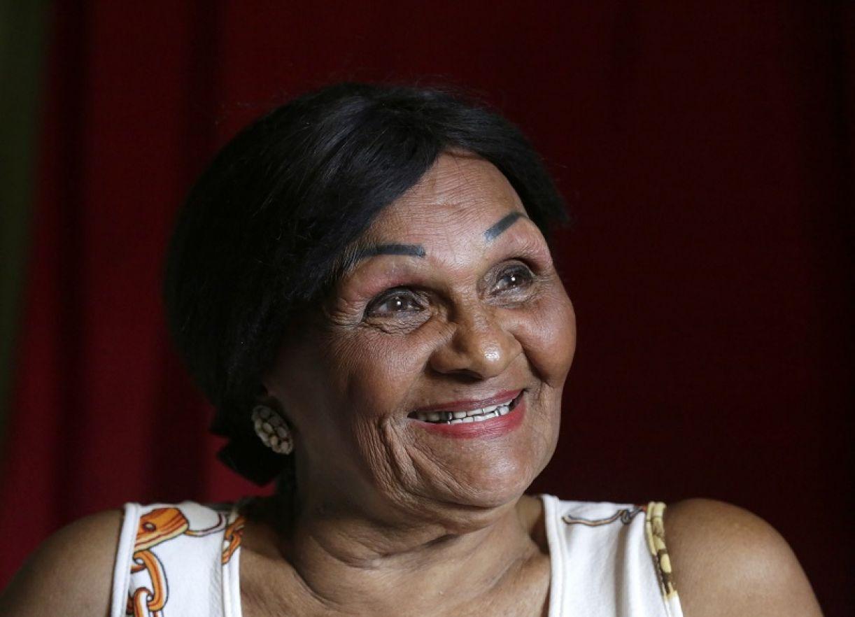 Em 2006, a artista recebeu do Estado o título de Patrimônio Vivo de Pernambuco pelo tempo de trabalho e dedicação à arte circense